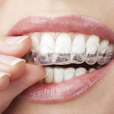 Invisalign Seattle - Close up of a woman placing the clear aligners in her mouth
