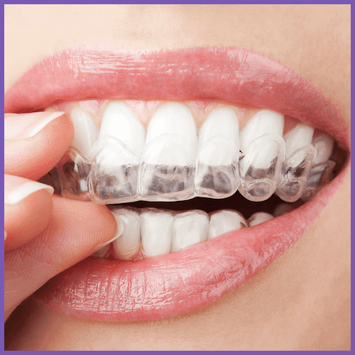 Closeup of a patient putting on a custom Invisalign tray. This dentist offers Invisalign in Seattle