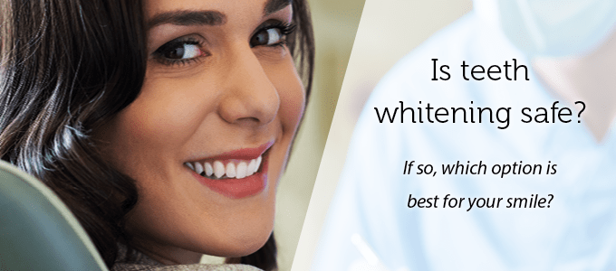 Is teeth whitening safe? If so, which option is best for you?
