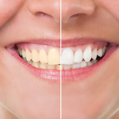 Close up before and after of our in-office teeth whitening